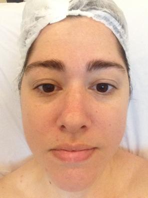 Retomando Os Cuidados Com A Pele Limpeza De Pele Por Hidrossuccao